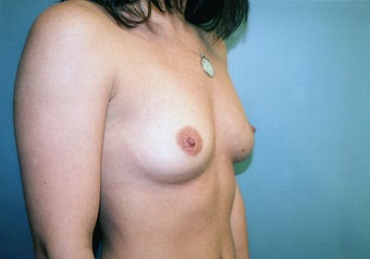 Breast Augmentation (425cc Saline Implants) before 278048