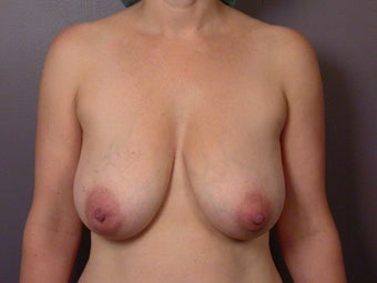 Breast Lift before 311074