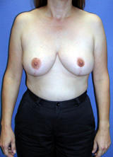 Breast Lift (mastopexy) Surgery after 122672