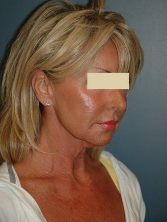 Facelift before 137049