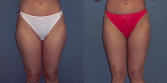 Tumescent Liposuction before 78391