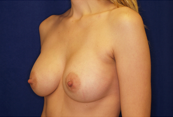 Breast Augmentation 336009
