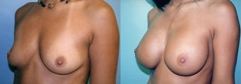 Large Breast Implants (450cc), Post-Pregnancy before 352757