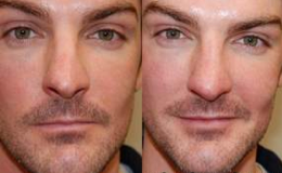 Non-Surgical Rhinoplasty with Silikon-1000 before 143567