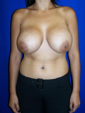 Breast Implants Revision Surgery