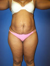 Tummy Tuck Surgery (abdominoplasty) before 129750