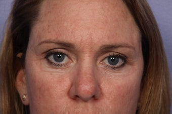 Eyelid Surgery after 306447