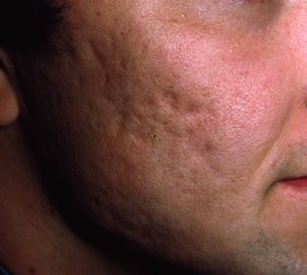 Acne Scarring before 157588