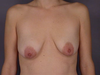 Breast Lift / Breast Augmentation    before 291037