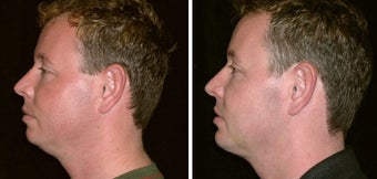 34 year old male, chin implant before 630099