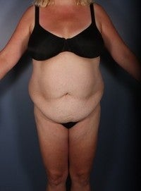 Tummy Tuck, Liposuction before 374144