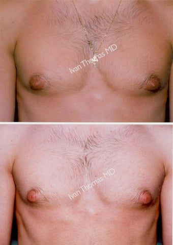 Male Breast reduction-Gynecomastia before 243678