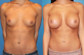 Breast Augmentation before 310714