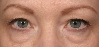 Eyelid surgery before 140086
