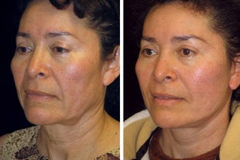 51 Year old female facelift before 617331
