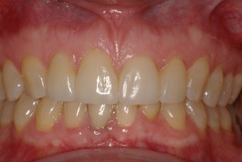 Porcelain Veneers four front teeth after 364514