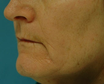 Chemical Peel after 125908
