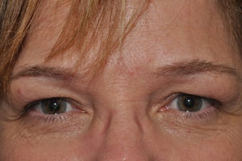Permanent Eyeliner before 493479