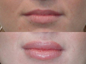 Lip Augmention with Silicone before 137744