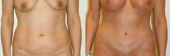 Tummy tuck before 143289