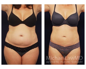 Liposuction before 392397
