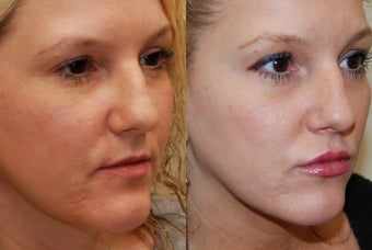 Lip Augmentation with Silikon-1000. 2 treatments. before 487939