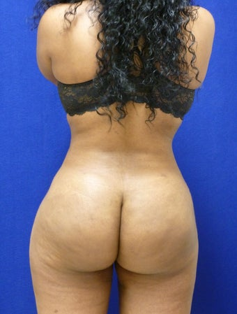 Buttock Augmentation - Fat Transfer after 315867