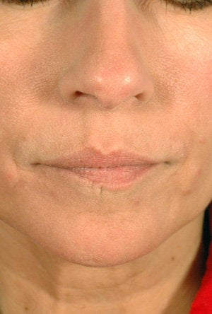 Juvederm for Mouth Rejuvenation  after 204763