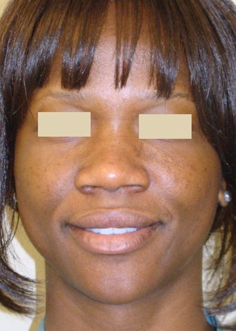 African American Rhinoplasty before 104225