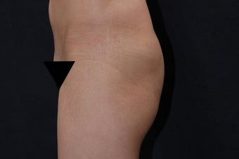 Buttock Augmentation with Gluteal Implant 411237