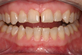 porcelain crowns to close space before 336722