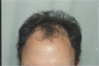 Hair Transplantation before 109450