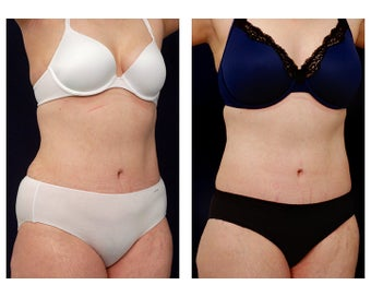Liposuction after 397021