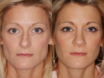 Revision rhinoplasty before 334284