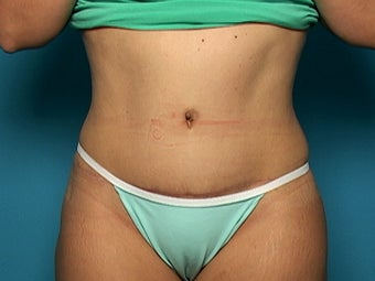 Abdominoplasty after 134588