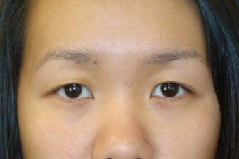 Double lid Asian blepharoplasty before 103872