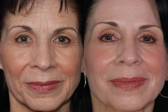 Derma K and Fraxel Repair Laser Treatment of Wrinkles before 353866