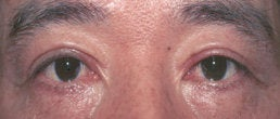 Eyelid Surgery after 154210
