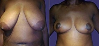 Breast Reduction and Lift before 110093