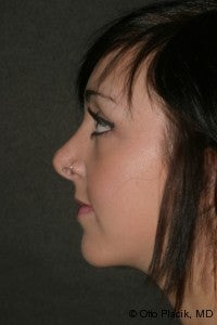 Chin Augmentation & Rhinoplasty after 565873