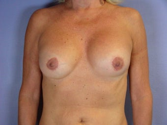 Circumareolar Breast Lift and Implants  after 307463