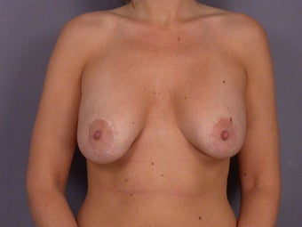 Breast Revision Surgery  before 306993