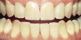Whitening aging teeth before 234632