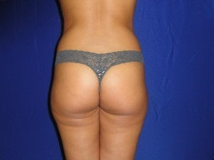 34 year old Brazilian Butt Lift