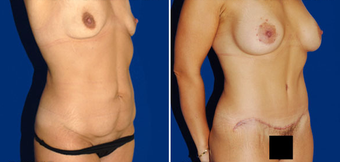 Tummy Tuck after 495843