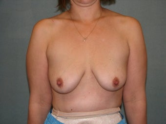 breast lift with augmentation before 348052
