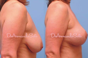 Mastopexy (Breast Lift) before 122903