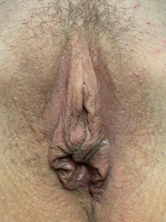 Labiaplasty before 281454