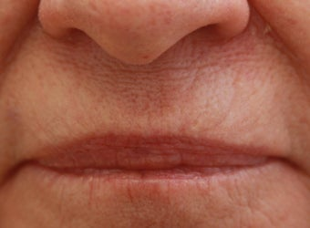 Upper Lip (whistle) lines after 508944