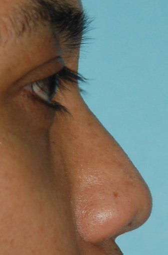 Non Surgical Rhinoplasty before 307848